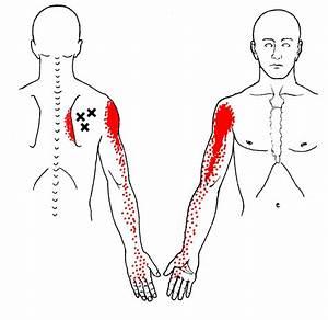 Pijn borstbeen 5 mogelijke oorzaken van sternumklachten