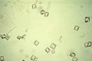 Calcium Oxalate Dihydrate Crystals In Urine   www.pixshark ...