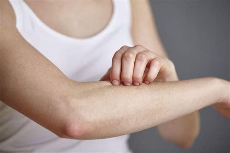 Erythrasma Symptoms, Causes, Diagnosis, And Treatment