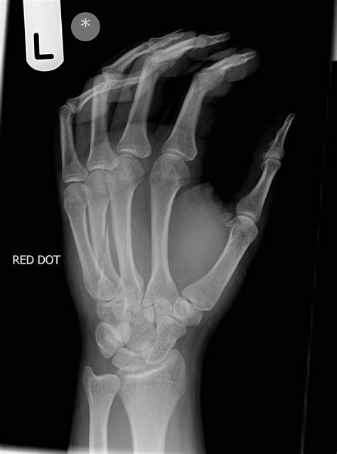 4th metacarpal fracture | Image | Radiopaedia.org
