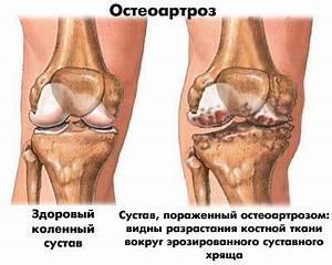 Артрит коленного сустава симптомы и лечение препараты