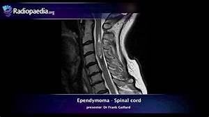Spinal Ependymoma - Radiology Video Tutorial  Mri