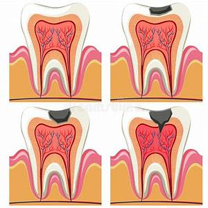 Tooth Decay Diagram In Details Stock Vector