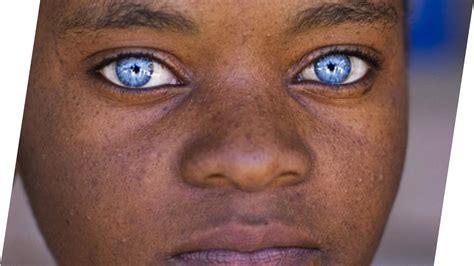 Die Bedeutung Deiner Augenfarbe Und Was Sie über Deine