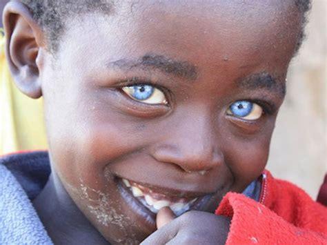El Niño Con Ojos De Zafiro ¿cierto O Falso?  Planeta Curioso