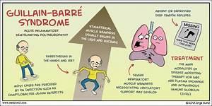 Understanding G... Guillain Barre