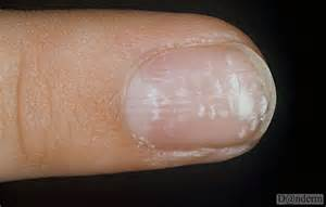 you have a white spots on nails here what they indicate