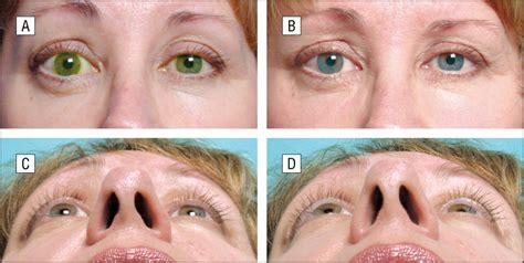 minimally invasive orbital decompression anesthesiology jama ophthalmology  jama network
