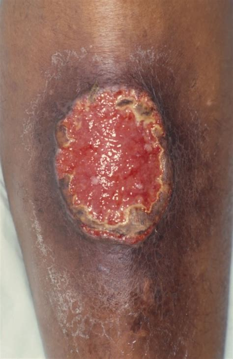 pyoderma gangrenosum patientenfolder