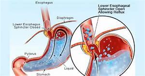 Acid Reflux Test Low High Stomach Acid