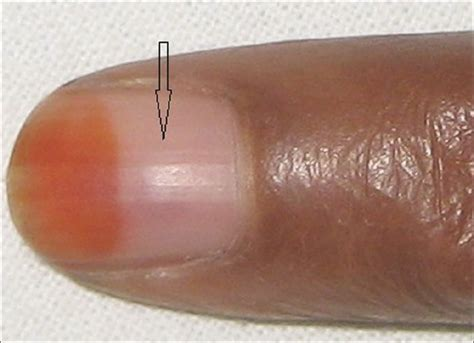 dusky nail beds nail avulsion indications and methods surgical nail