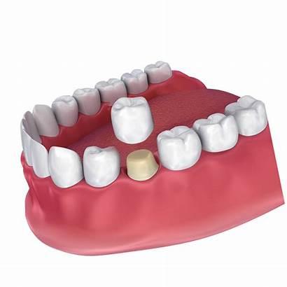 Dental Crowns Crown Jackson Avoid Drinks Foods