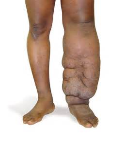 Lower Extremity Lymphedema
