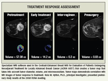 This is especially true for smaller centers or those with low breast mri case volumes. New research underlines growing alternatives for breast imaging | Diagnostic Imaging