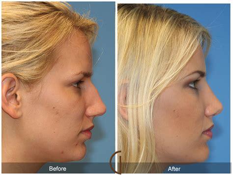 orange county ent specialist  facial plastic surgeon