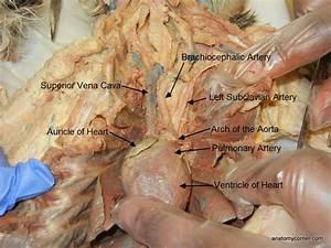 Auricle Of Heart L Jpg