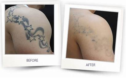 Tattoo Removal Laser Alma Before Clearlift Lasers