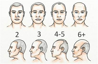 Hair Norwood Loss Balding Scale Results Minoxidil