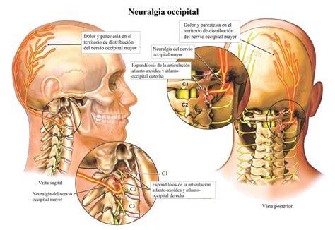 vertigo de origen cervical sintomas causas al acostarse