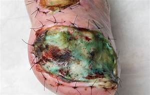 Infected Skin Graft  Gross Human Anatomy