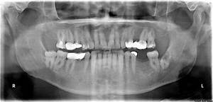 Control Panoramic Radiograph During Lower Left Third Molar