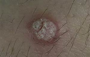 Средства от лечение бородавок