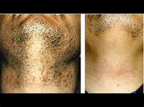 treat ingrown hairs  black skin