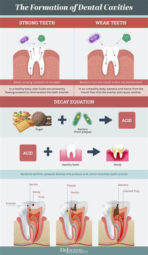 steps  prevent cavities naturally drjockerscom