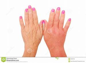 Swollen Hand Royalty Free Stock Photo - Image: 32856185
