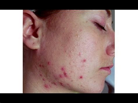 Acne Remedies: Acne Treatments | Dry Skin Acne Treatment