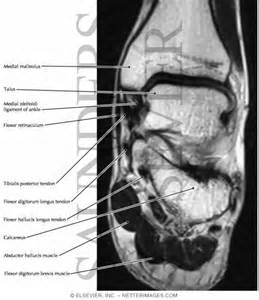 Anatomy of the Deltoid Ligament Ankle MRI
