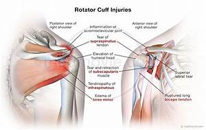 Photos  Rotator Cuff Strains