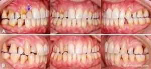 Dents Qui Se Déchaussent Photos : r cession gingivale d chaussement et orthodontie b cco ~ Medecine-chirurgie-esthetiques.com Avis de Voitures