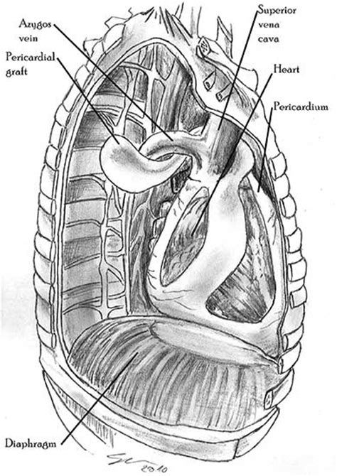 Pericardial Reconstruction in Thoracic Surgery   CTSNet