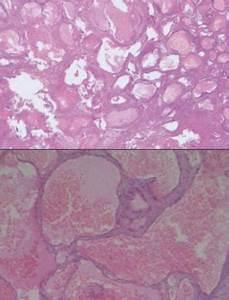 Печень гемангиома лекарства лечение