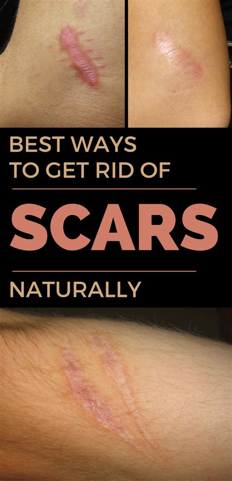 best ways to get rid of scars naturally bestwomentips