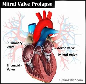 Mitral Valve Prolapse Or Floppy Mitral Valve Syndrome