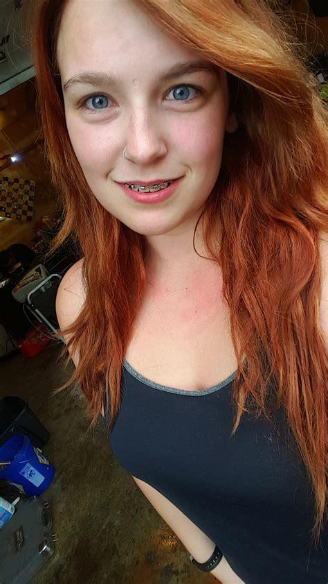 Braces Selfie Tumblr