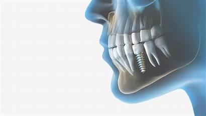 Dental Wallpapers Implant Implants Desktop Dentistry Computer