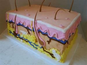 Skin Diagram In Cake