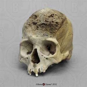 Image Gallery syphilis skull