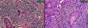 Benign Lymphoepithelial Lesion