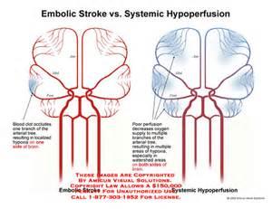 ... of brains arterial tree with localized hypoxia vs. watershed hypoxia Cerebral Hypoxia