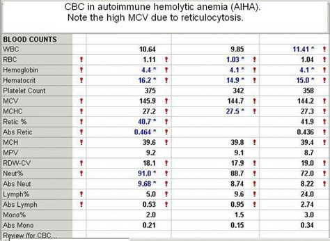 hemoglobin 4 2 mg dl due to autoimmune hemolytic anemia viral infections articles
