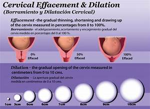 Cervical Checks
