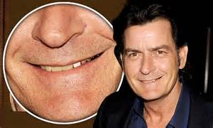 Charlie Sheen shows off odd-looking tooth at first public ...
