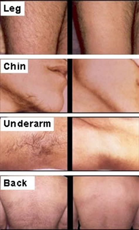 permanent breast forms hair today gone tomorrow the facts on laser hair removal