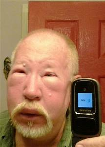 Yellow jacket wasp sting allergic reaction