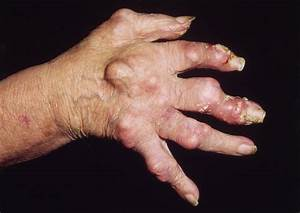 Homeo Expression  Gout  U0026 Uric Acid