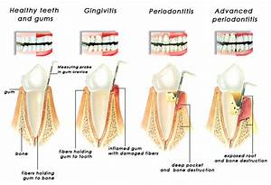 Periodontal Disease - Silent But Deadly